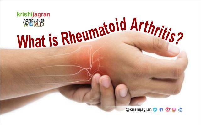 Rheumatoid arthritis stages - Evaluation of complex therapy in early stages of rheumatoid arthritis